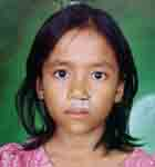 Key Kid Foundation .org, fix Cleft Palate, Fix deformaties, Facial Surgery Project